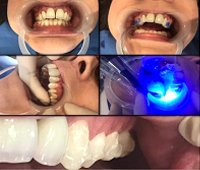 invisalign-appointment