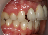 removable-braces